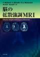 脳の拡散強調MRI