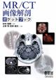 MR/CT画像解剖ポケットブック