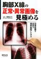 胸部X線の 正常・異常画像を 見極める 日常診療で出合う境界症例アトラス