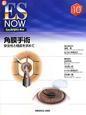 角膜手術 新・ES NOW10 安全性と精度を求めて