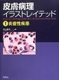 皮膚病理イラストレイテッド 炎症性疾患(1)