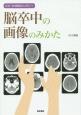 症状・経過観察に役立つ 脳卒中の画像のみかた