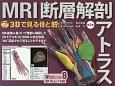 MRI断層解剖アトラス<第2版> CD-ROM付き 3Dで見る骨と筋