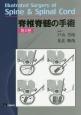 脊椎脊髄の手術 (2)