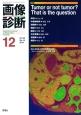 画像診断 35-14 2015.2 特集:Tumor or not tumor? That is the question