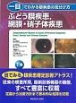 一目でわかる眼疾患の見分け方(下) ぶどう膜疾患,網膜・硝子体疾患