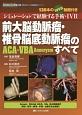 前大脳動脈瘤・椎骨脳底動脈瘤(ACA・VBA Aneurysm)のすべて シミュレーションで経験する手術・IVR