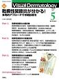 Visual Dermatology 15-5 2016.5 目でみる皮膚科学