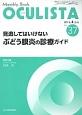 OCULISTA 2016.4 見逃してはいけないぶどう膜炎の診療ガイド Monthly Book(37)