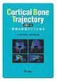 Cortical Bone Trajectory(CBT)法 理想の軌道がここにある