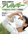 きちんと知ろう!アレルギー ぜんそく・アトピー・花粉症 (3)