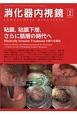 消化器内視鏡 29-2 2017.2 粘膜、粘膜下層、さらに筋層の時代へ