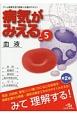 病気がみえる 血液 チーム医療を担う医療人共通のテキスト(5)