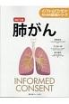 肺がん<改訂5版> インフォームドコンセントのための図説シリーズ