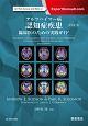 アルツハイマー病 認知症疾患 臨床医のための実践ガイド